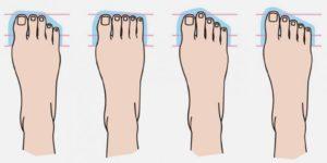 Тест: По форме пальцев на ноге определим, кем могли быть ваши предки