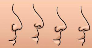 Тест: Мы угадаем форму вашего носа за один вопрос?