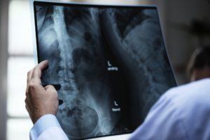 Тест по медицине: Что вы знаете об артрозе позвоночника?