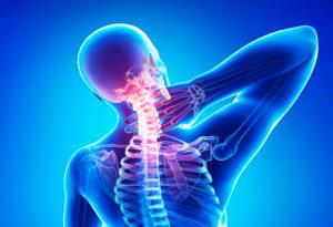 Тест по медицине: Что такое остеохондроз и его последствия?