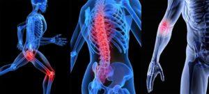 Тест по медицине: Проверим ваши знания о заболеваниях опорно-двигательного аппарата