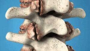 Тест по медицине: Что такое остеофиты?