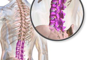 Тест по медицине: Что вы знаете о стенозе позвоночника?