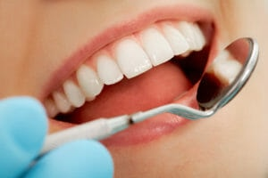 Тест: Что вы знаете о зубах?