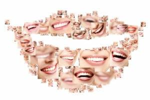 Тест: Сможете ли вы отгадать знаменитость по улыбке?